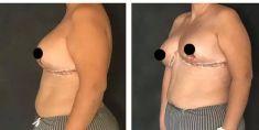 Mastoplastica riduttiva (Riduzione seno) - Foto del prima - Dott.ssa Maria Stella Tarico M.D.