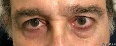 Blépharoplastie - Cliché avant - Dr Christian Eulufi
