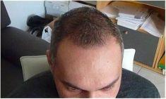 Haartransplantation - Vorher Foto - Prohaarklinik