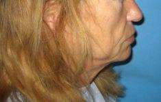 Facelift (operace obličeje), SMAS lifting - fotka před - LaserPlastic
