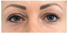 Odstranění kruhů pod očima - fotka před - Neo Beauty Clinic