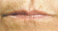 Dermal fillers - Photo before - MUDr. Roman Kufa - Perfect Clinic