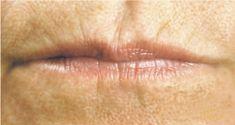 Dermal fillers - Photo before - MUDr. Roman Kufa - Perfect Clinic