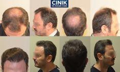 Dr. Emrah Cinik - Photo before - Dr. Emrah Cinik