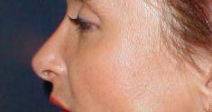 Plastika nosu (Rhinoplastika) - fotka před - LaserPlastic
