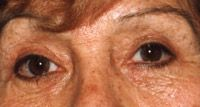 Cirugía de párpados (Blefaroplastia) - Foto Antes de - Dr. Marcelo Bernstein CONSULTOR en Cirugía Plástica