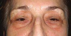 Eyelid surgery (Blepharoplasty) - Photo before - Dr. Sorin Parasca