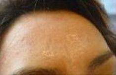 Mikrojehličkování, Microneedling (Skinroller - Dermaroller) - fotka před