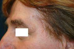 Entfernung von Hautauswüchsen und Muttermalen (Hauttumoren) - Vorher Foto - Priv.-Doz. Dr. Georg M. Huemer MSc, MBA