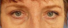 Operace očních víček (Blefaroplastika) - fotka před - Laderma - klinika plastické chirurgie