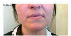 Wypełnianie zmarszczek - Bruzdy nosowo-wagowe i podniesienie kącików ust 2 ml preparatu wypełnienie zmarszczek klinika Beauty Medica Katowice