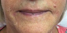 Výplně na bázi kyseliny hyaluronové - fotka před - Klinika estetické medicíny Petra Clinic