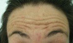 MUDr. Tomáš Kempný Ph.D. - Ani při usilovném pokusu o stažení čela není toto možné.