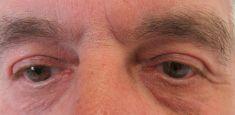 Plexr - Lifting horních očních víček, bez jizev - jen malý otok a stroupky cca 1 týden. Na fotografiích stav před a po vyhojení po ošetření.