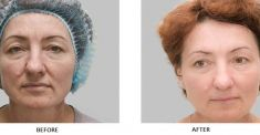 Mesotherapy (face, neck revitalization) - Photo before - Laserová dermatologická klinika ALTOS