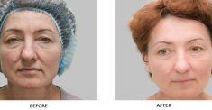 Laserová dermatologická klinika ALTOS - fotka před - Laserová dermatologická klinika ALTOS