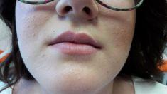 MediDerm & Slim - zvacsovanie pier.aplikovany Teosyal Kiss - 1 ml