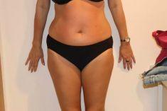 Alternativa liposukce - neinvazivní odstranění tuku a celulitidy - Bezbolestná liposukce, hubnutí břicha, boků, stehen po osmi procedúrách, úbytek 10 cm, Beauty studio Dana, Praha 9, Vyzkoušejte a výsledek uvidíte hned.
