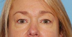 Eyelid surgery (Blepharoplasty) - Photo before - Lékařský dům Praha 7