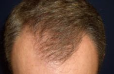 Haartransplantation - Vorher Foto - Dr. Walter Grath