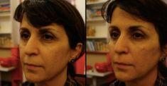 Dermal fillers - Photo before - Dr Emmanuel Elard
