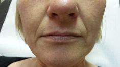 Hyaluronic acid-based wrinkle fillers - Photo before - Dr. Maletić Ana