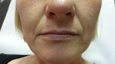 Hyaluronic acid-based wrinkle fillers - Photo before - Dr. Maletić Ana