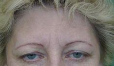Operace čela  (Forehead lift) - fotka před - MUDr. Martin Kloud