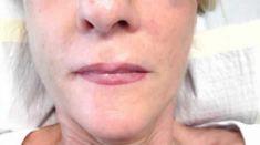 Lipofilling (Fettinjektion) - Vorher Foto - PD Dr. med. Jakob Bodziony