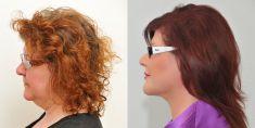 Odstranění podbradku - fotka před - Klinika YES VISAGE - klinika estetické medicíny a plastické chirurgie