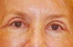 MUDr. Michal Puls CSc. - MEDICOM Clinic - fotka před - MUDr. Michal Puls CSc. - MEDICOM Clinic