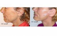 Lifting du visage - Cliché avant - Dr Adel Louafi