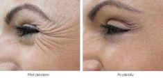 Laserová dermatologická klinika ALTOS - Photo before - Laserová dermatologická klinika ALTOS