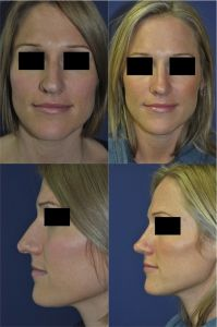 Rhinoplasty (Nose Job) - Photo before - Mr. Marc Pacifico M.D.