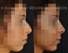 Génioplastie - Chirurgie esthétique du menton - Rhinoplastie médicale, injections des lèvres et du menton