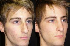 Dott. Enrico Robotti - Nei trequarti, è evidente il miglioramento delle proporzioni tra radice, dorso e punta. Il naso è stato comunque lasciato abbastanza lungo.