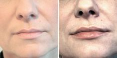 Lip augmentation - cheiloplasty - Photo before - Brandeis Clinic by Lucie Kalinová