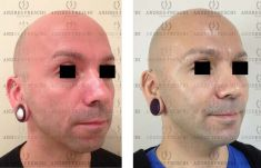 Lipotransferencia de grasa (lipofiling) - Foto Antes de - Dr. Andres Freschi