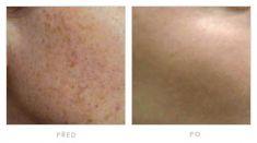 Tattoo removal - Photo before - Klinika YES VISAGE - klinika estetické medicíny a plastické chirurgie