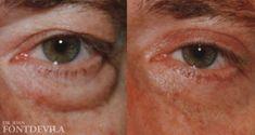 Cirugía de párpados (Blefaroplastia) - Foto Antes de - Prof. Joan Fontdevila Font