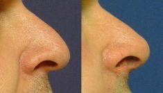Plastika nosu (Rhinoplastika) - fotka před - MUDr. Jana Vybulková Zavadilová
