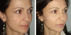 Dermal fillers - Photo before - Violeta Skorobać Asanin MD, PhD