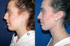 Cirugía de la nariz (Rinoplastia) - Rinoplastia en Aurea Clinic con la Dra Martinez Padilla