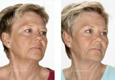 Hyaluronic acid-based wrinkle fillers - Photo before - Dr. Dobos Calin