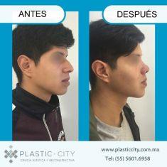 Cirugía de la nariz (Rinoplastia) - TECNICA CERRADA DE RINOPLASTIA, SIN INCISIONES VISIBLES