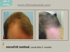 Dr. Thomy Kouremada-Zioga Hair Implant Surgeon - Photo before - Dr. Thomy Kouremada-Zioga Hair Implant Surgeon