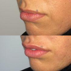 Augmentation des lèvres - Cliché avant - Dr Fabien Giausseran