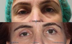 Eyelid surgery (Blepharoplasty) - Photo before - Cirumed Clinic