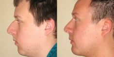 Rhinoplasty (Nose Job) - Photo before - Anthony Geroulis M.D.