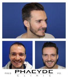 Transplantácia vlasov - Fotka pred